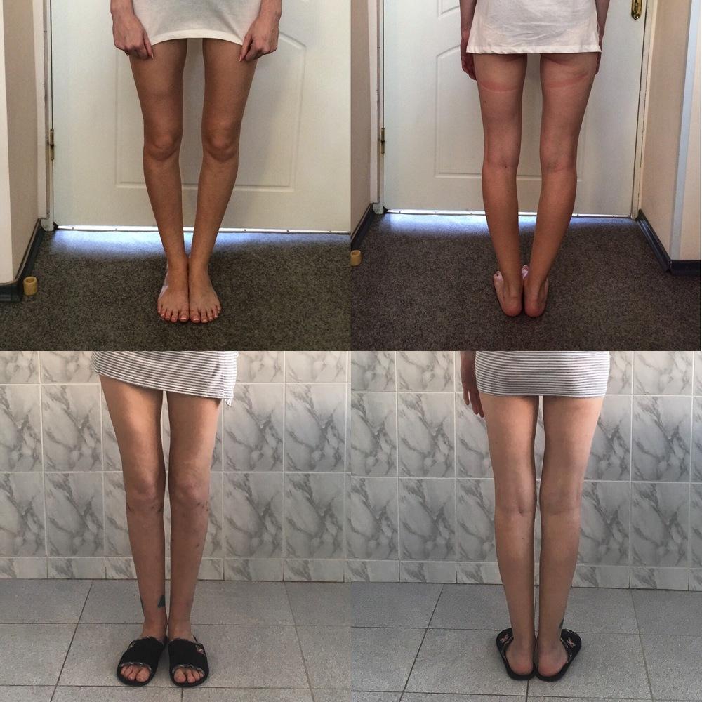 Аппарат лазарева для коленных суставов лечениеопухших суставов