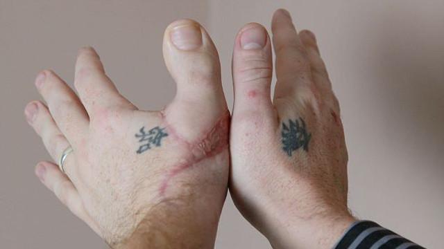 Мужику отрезали член и пришили палец
