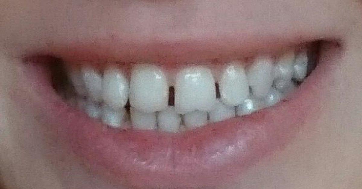 У меня желтые передние зубы с дырками