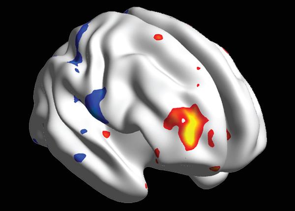 Обнаружена биологическая основа эффекта плацебо биология, нейробиология, мозг, плацебо, наука, нейронаука, N+1, xkcd, длиннопост