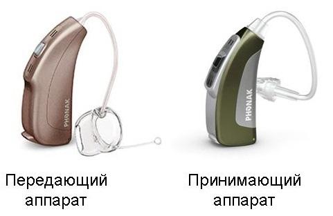 Слухопротезирование при односторонней глухоте слуховой аппарат, Односторонняя глухота, слух, слухопротезирование