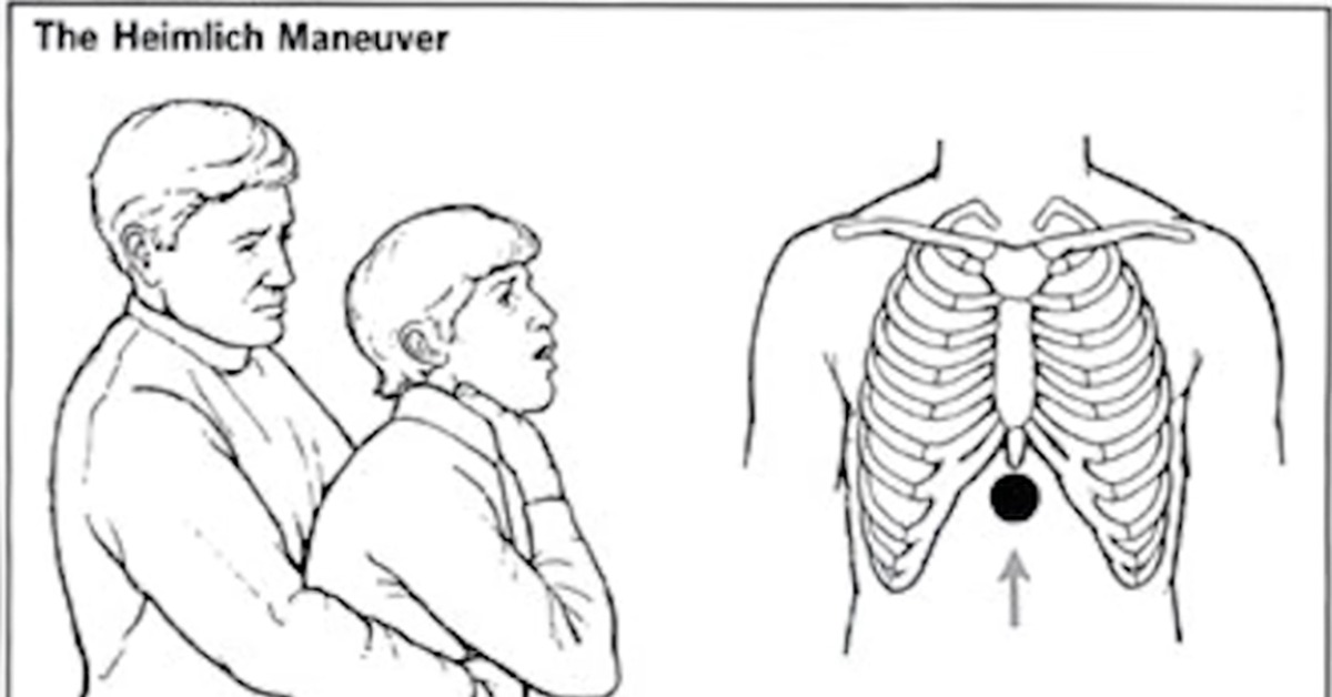 an analysis of the heimlich maneuver in medical research As part of research, health experts at the royal brompton hospital in london swallowed two special catheters to evaluate the effectiveness of both self-performed and the standard heimlich maneuver the self-performed procedures used either a chair or the participants' own arms.