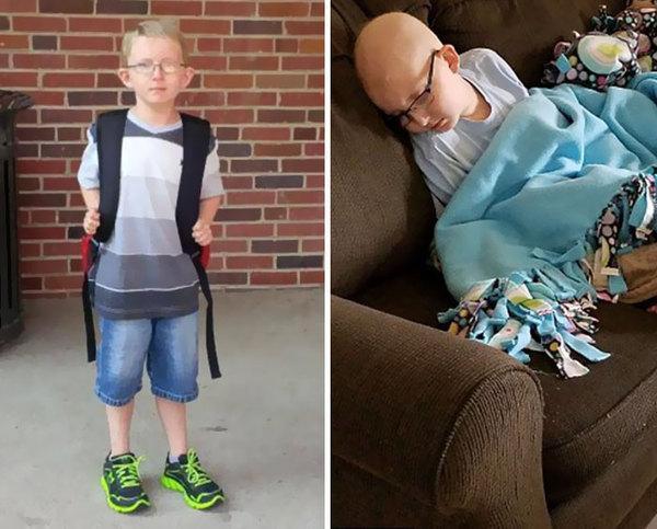 Настоящее лицо детского рака рак, Дети, смерть, длиннопост, не мое