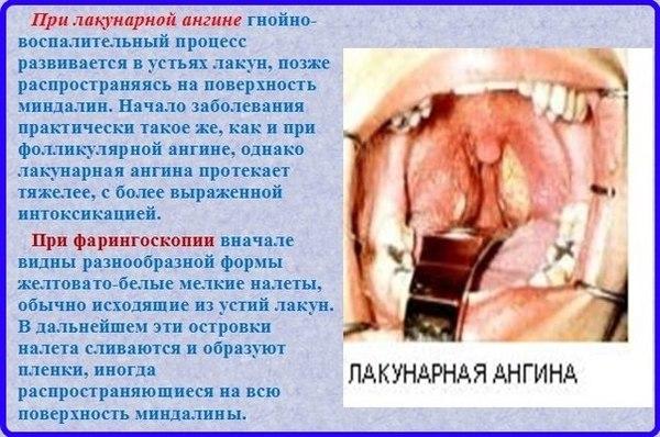 важным острое заболевание в медицине белье, синтетическое, тем