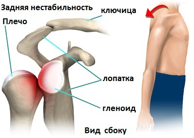 Изображение - Нестабильность плечевого сустава лечение 1490431146176867075