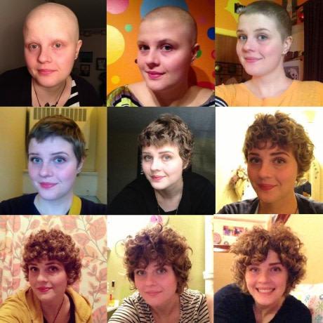Год после курса химиотерапии