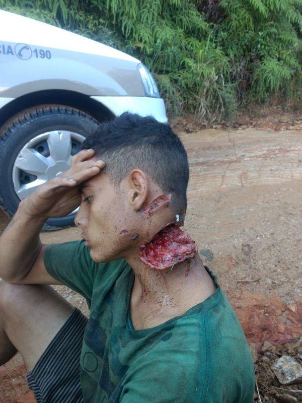 Бразильские копы спасли парня с почти отрезанной головой Грабители, Криминал, Жесть, Везение, Длиннопост
