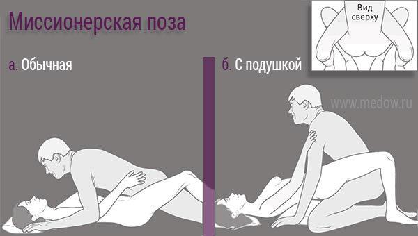 Позы для секса с верхним расположением влагалищя
