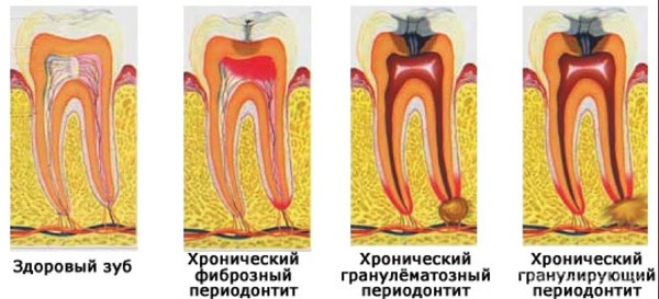 Простая Стоматология. Периодонтит. rentgenologia, длиннопост, зубы, стоматология, периодонтит, Картинки, полезное, Медицина