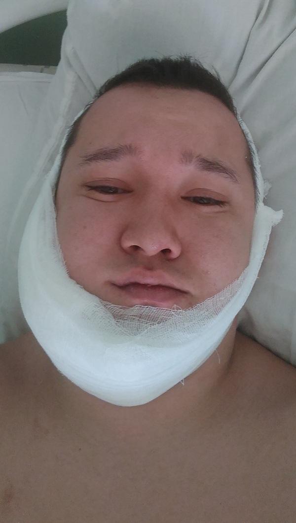 Как я оказался в реанимации скорая помощь, лучший друг, перелом челюсти
