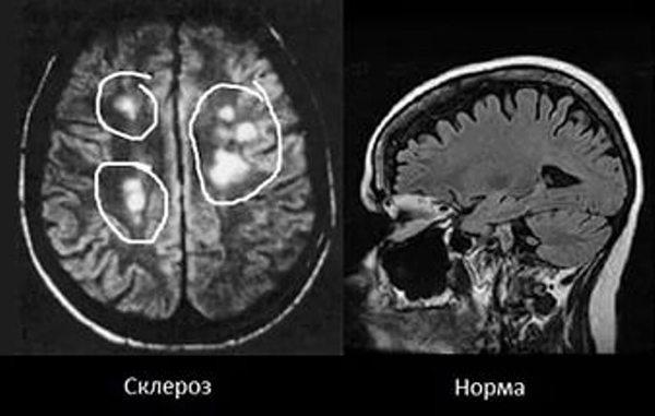 Завалишин рассеянный склероз