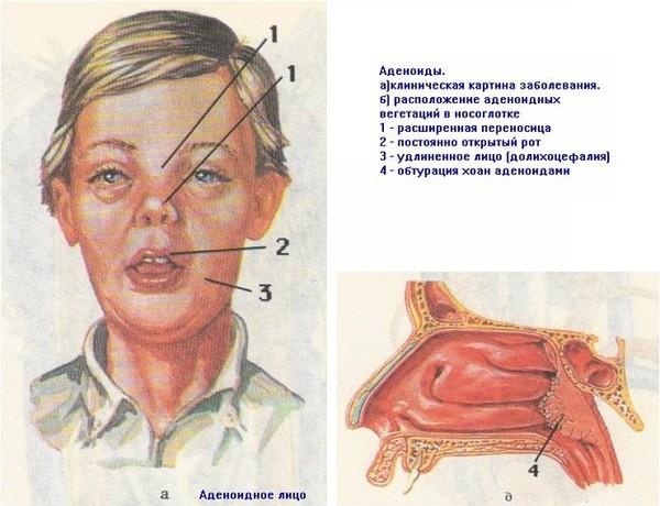 Бронхиальная астма симптомы и лечение опасного