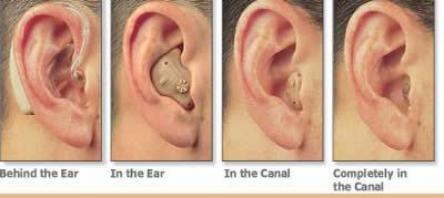 Степени потери слуха и внутриушные слуховые аппараты. слух, слуховой аппарат, ваш слух, Медицина, здоровье, ухо, тугоухость
