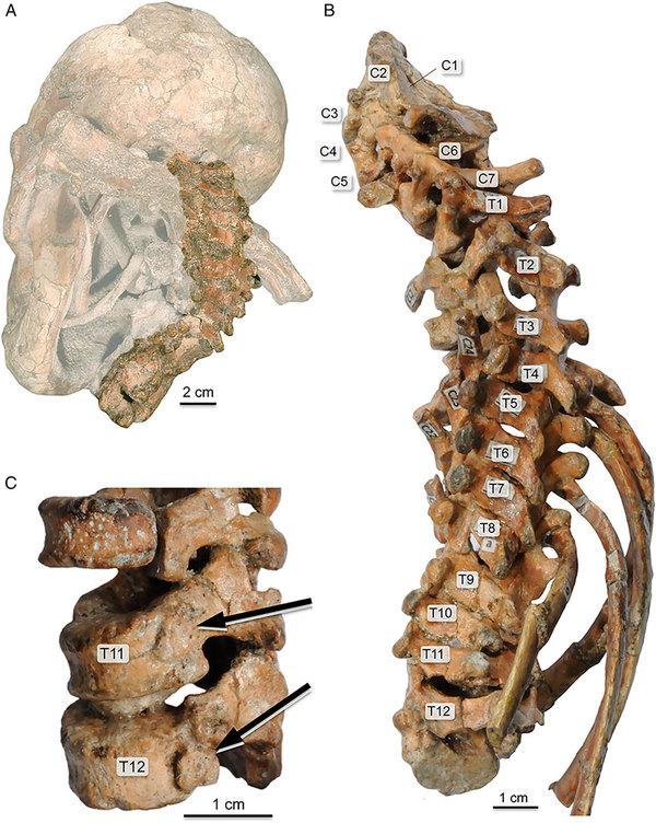 Древнейшая... спинка. Найден позвоночник австралопитека Антропогенез, Антропогенез ру, Australopithecus afarensis, Австралопитеки, Археологические находки, Наука, Длиннопост