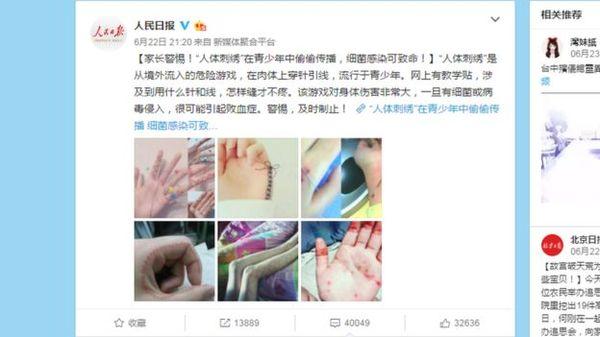 """""""Вышивание по телу"""" - новая опасная мода в Китае Новости, Bbc, Китай, Мода, Вышивка, Мазохизм, Подростки, Длиннопост"""