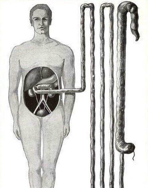 Наглядное представление кишечника Медицина, Картинки
