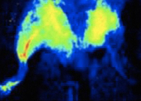 Наночип восстановил кровеносные сосуды в конечностях мышей наука, новости, технологии, Медицина, наночип