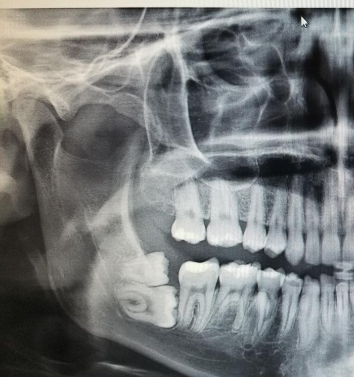 Сегодня был у зубного. Стоматолог, Зуб мудрости
