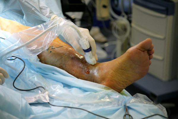 Хирургическое лечение варикоза. ЭВЛК. Ход операции жесть, не жесть, эвлк, варикоз, операция, фотография, видео, Медицина, длиннопост