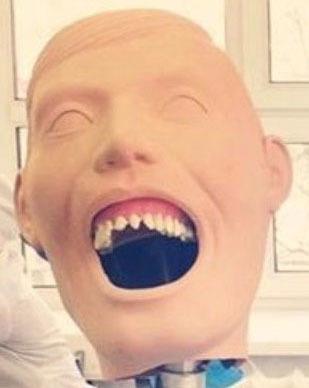 А могла бы ведь и отрезать) Стоматолог, Зубы, Наркоз, Обезбаливающее, Цой, Профессионал, Моё, История, Длиннопост