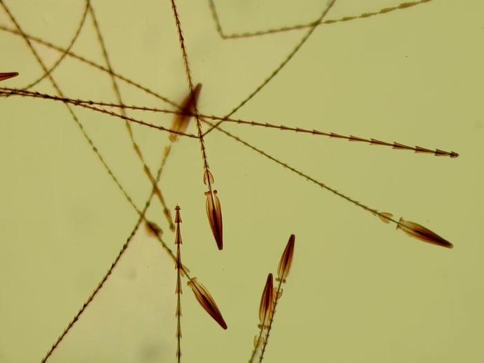 Странная находка под микроскопом Анализ мочи, Загадка, Медицина