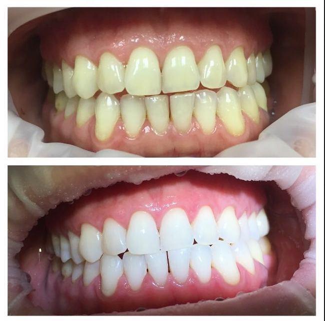 Znalezione obrazy dla zapytania Отбеливание зубов