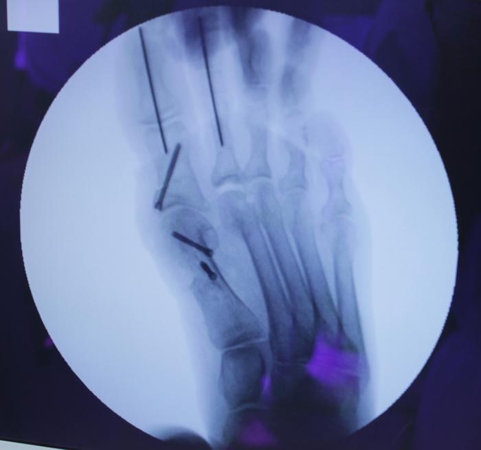 Шишки на пальцах ног - ход операции Жесть, Операция, Вальгус, Медицина, Травматология, Шишка на ноге, Длиннопост, Фотография