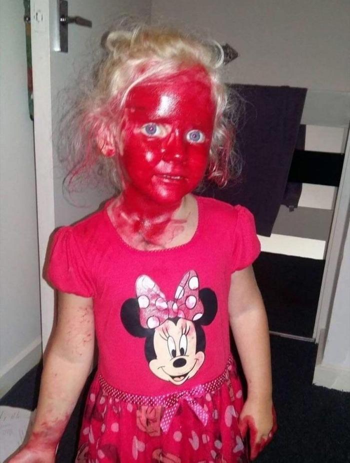 Девочка с окровавленным лицом после встречи с маньяком!