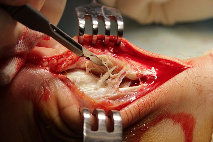 Разрыв ахиллова сухожилия - операция Операция, Травматология, Шипулин, Зинченко, Ахиллово сухожилие, Разрыв ахилла, Жесть, Длиннопост