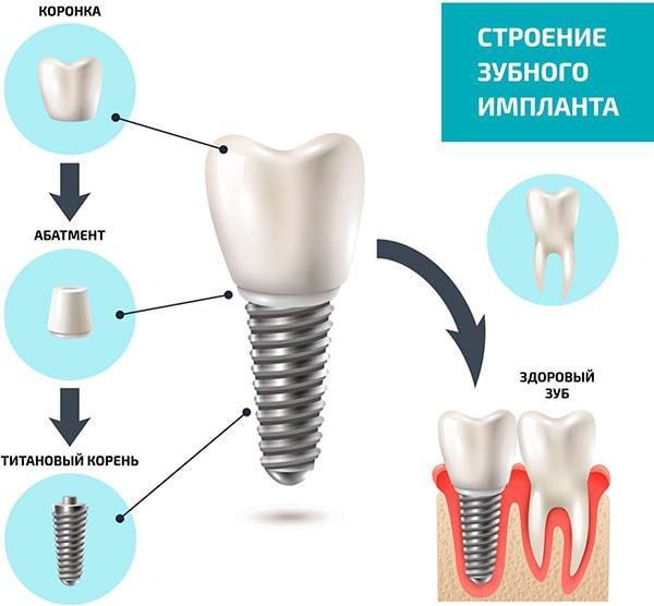 Зубные импланты: плюсы и минусы Имплантация зубов, Стоматология, Зубные протезы, Длиннопост