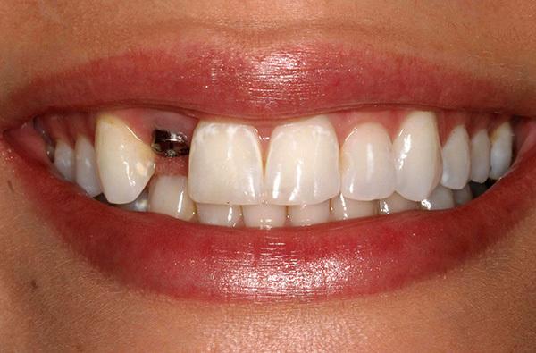 Больно ли делать имплантацию зубов? | Пикабу