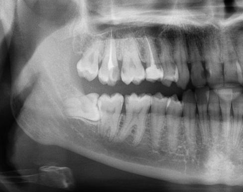 Как я удаляла зуб мудрости Зуб мудрости, Удаление зубов, Страх, Юмор, Длиннопост, Омерзительная восьмерка, Большая восьмёрка, Стоматология