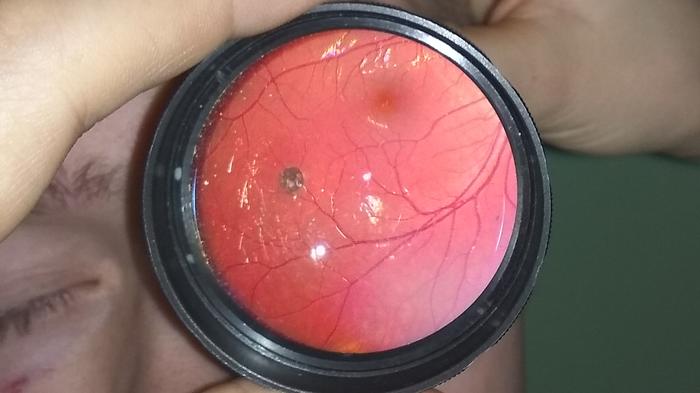 Глазное дно Глаза, Глазное дно