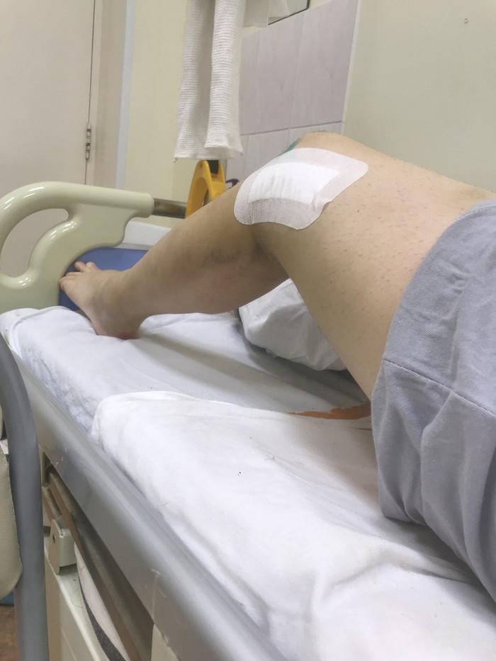 Как я провёл Новый год (часть 2) Авария, Восстановление, Реабилитация, Перелом, Перелом ноги, ДТП, Видео, Длиннопост
