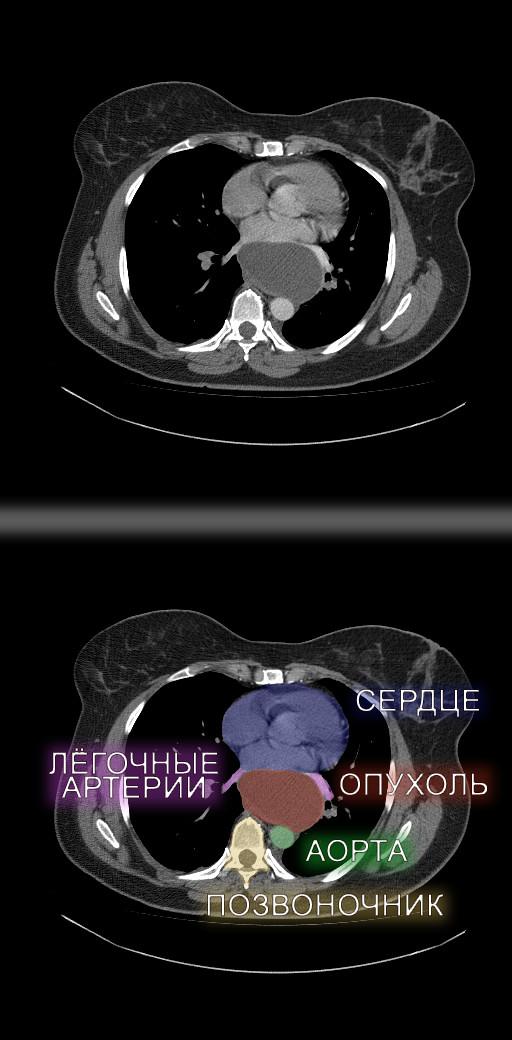 Хирургия. Средостение. Опухоль Медицина, Онкология, Хирург, Средостение, Длиннопост, Жесть