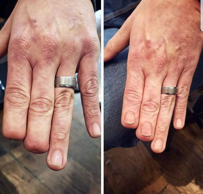 Гиперреалистичная татуировка ногтей художника Эрика Каталано Тату, Рука, Ампутация, Травма, Длиннопост