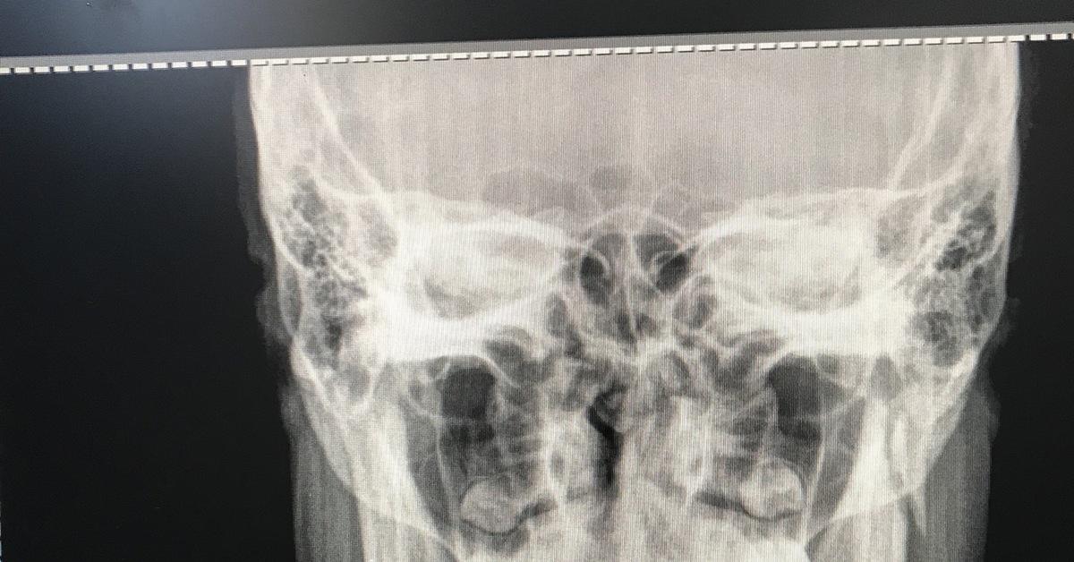 Как разработать челюсть после операции перелома thumbnail