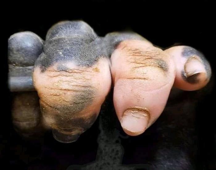 Рука гориллы с нарушением пигментации Горилла, Рука, Приматы, Витилиго, Картинки, Пигментация
