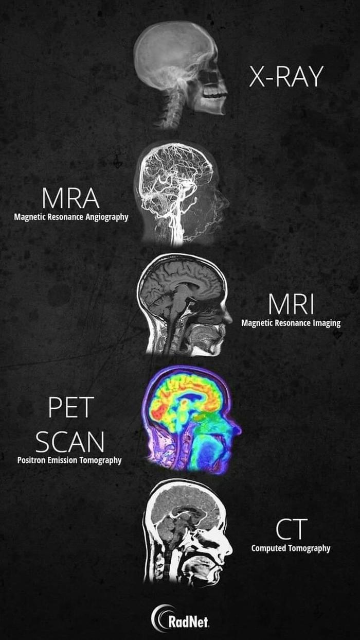 Рентген, МРТ и КТ Рентгеновское излучение, Томография, МРТ, Здоровье, Медицина, Насквозь, Видео, Гифка, Длиннопост
