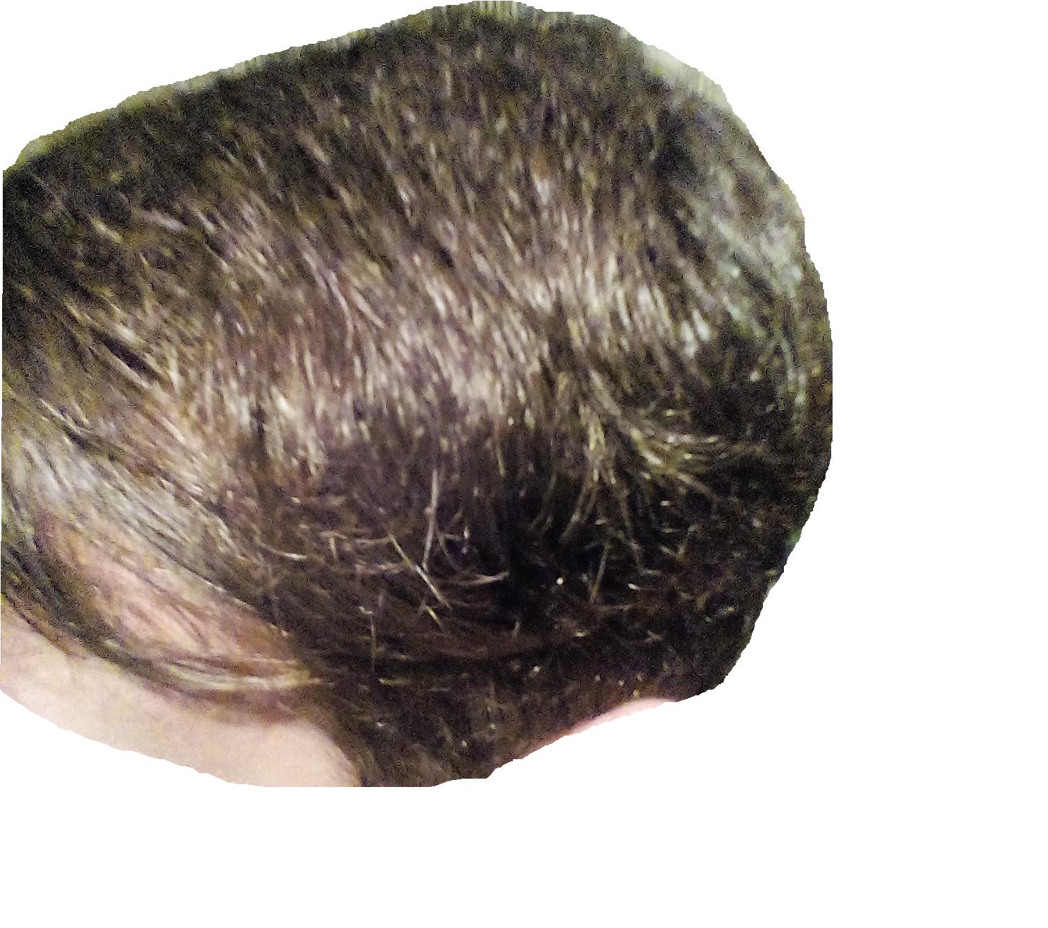 Почему волосы на голове перестали расти