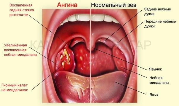 После секса горло болит и температура