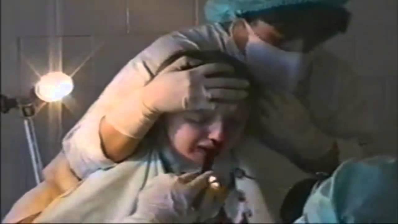 Видео как делаются операции на жопе фото 348-375