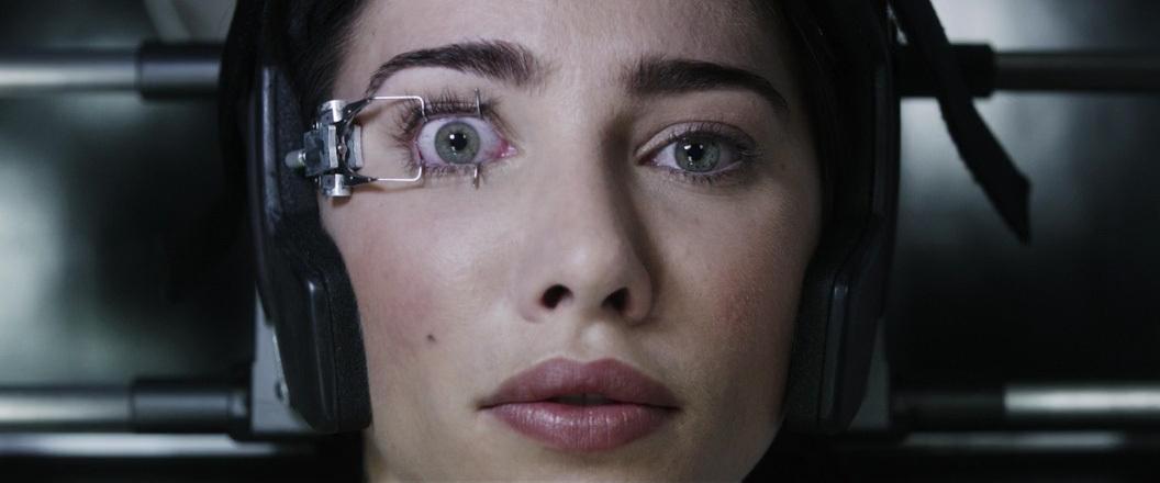 операция на глаза лазером