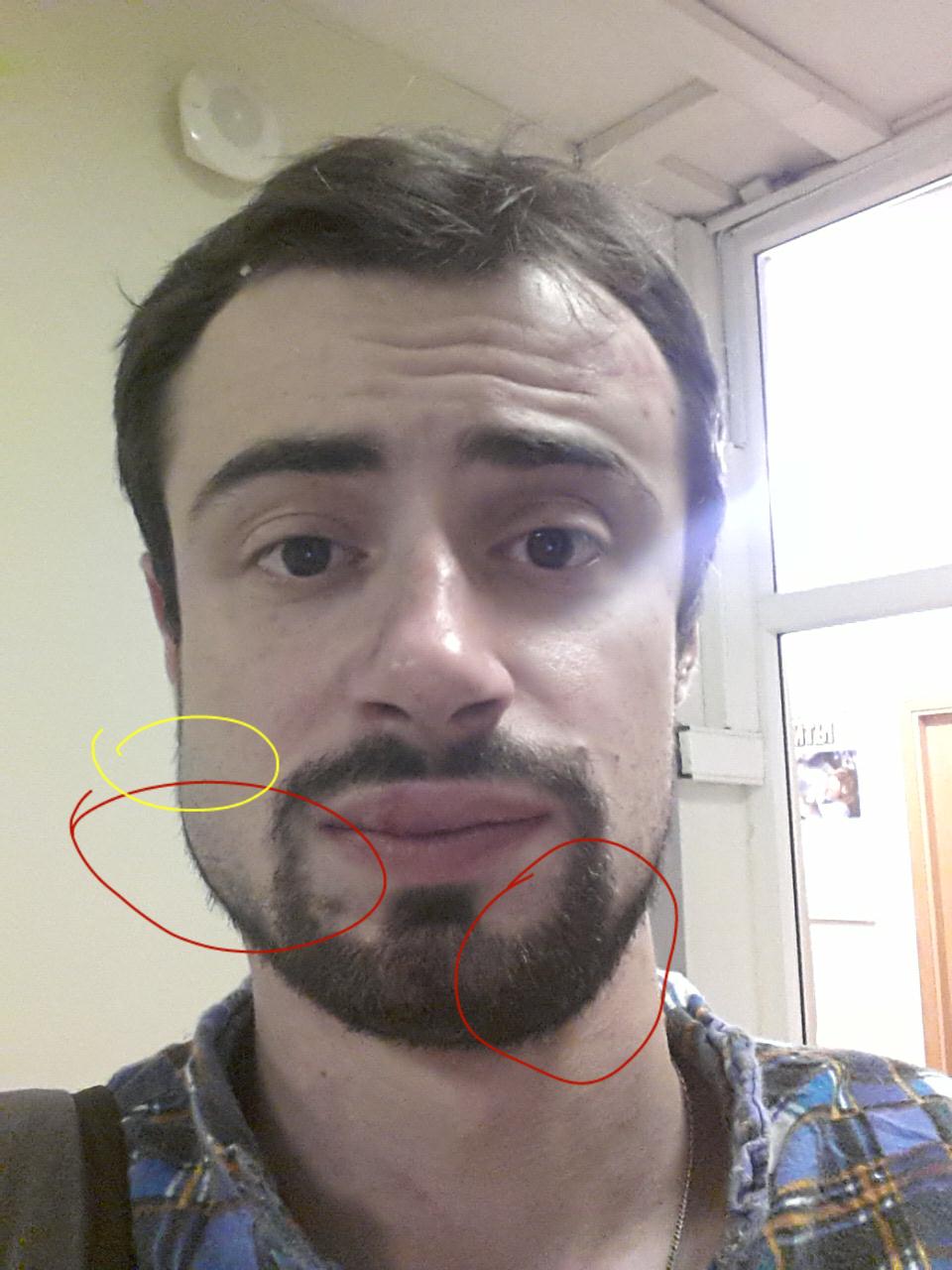 перелом челюсти фото