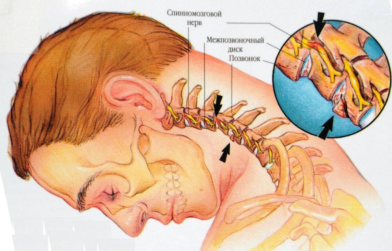 всё: как проявляется шейный и грудной остеохондроз это